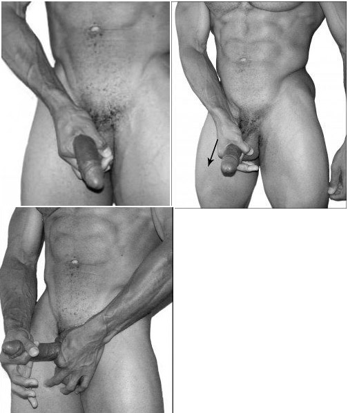 Pequenos lugares do calor em cabeças de pênis